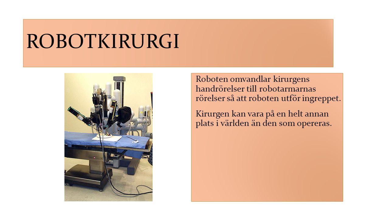 Robotkirurgi Roboten omvandlar kirurgens handrörelser till robotarmarnas rörelser så att roboten utför ingreppet.