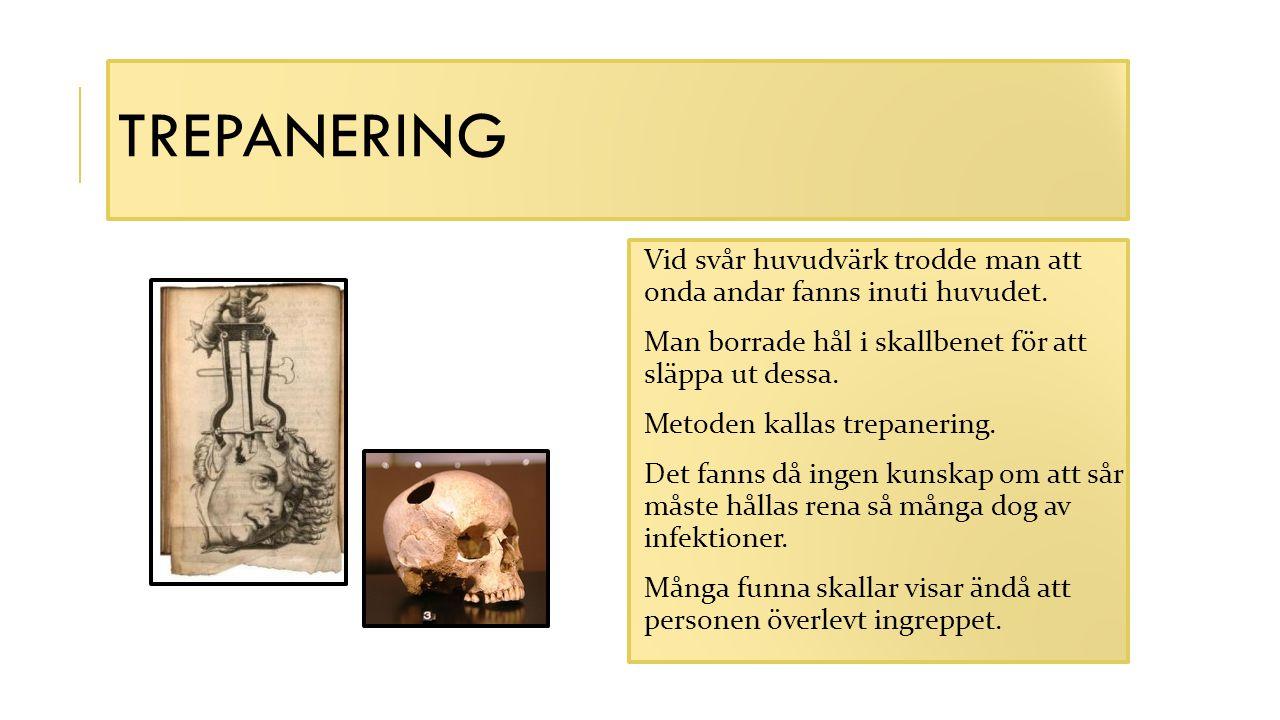 Trepanering Vid svår huvudvärk trodde man att onda andar fanns inuti huvudet. Man borrade hål i skallbenet för att släppa ut dessa.