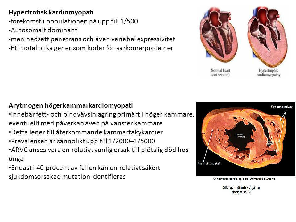 Hypertrofisk kardiomyopati