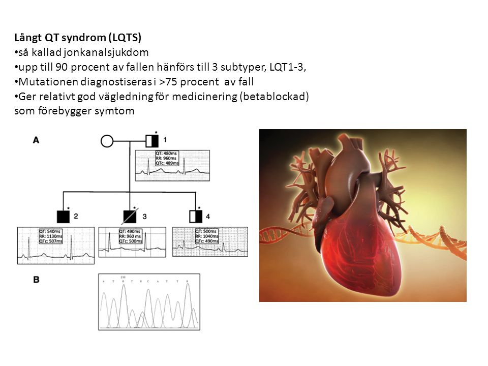 Långt QT syndrom (LQTS)