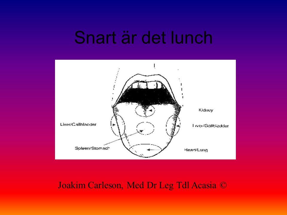 Snart är det lunch Joakim Carleson, Med Dr Leg Tdl Acasia ©