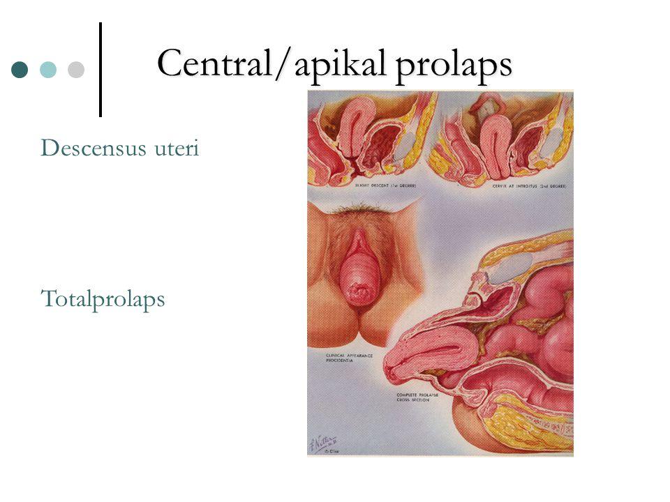 Central/apikal prolaps