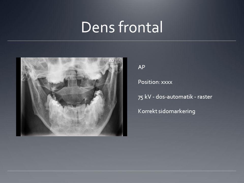 Dens frontal AP Position: xxxx 75 kV - dos-automatik - raster
