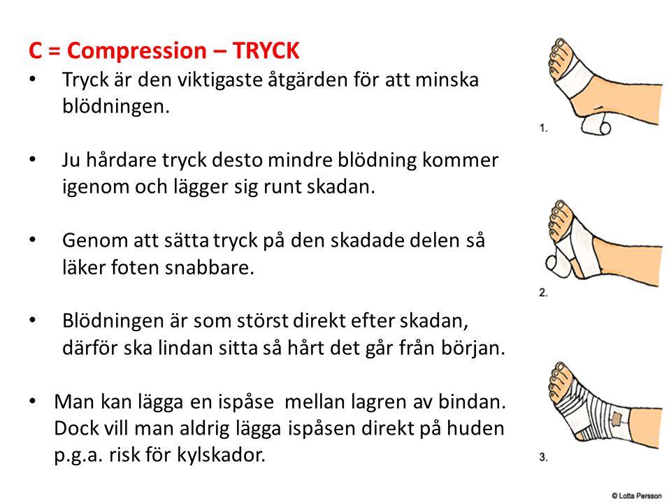 C = Compression – TRYCK Tryck är den viktigaste åtgärden för att minska blödningen.