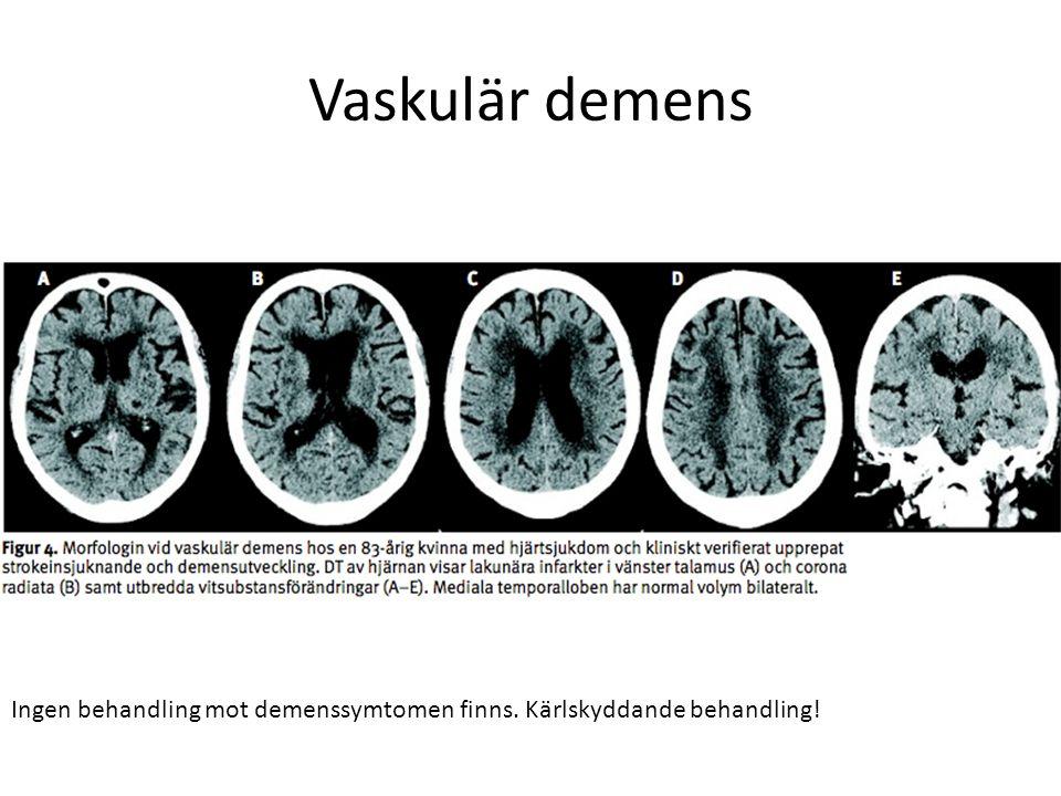 Vaskulär demens Ingen behandling mot demenssymtomen finns. Kärlskyddande behandling!