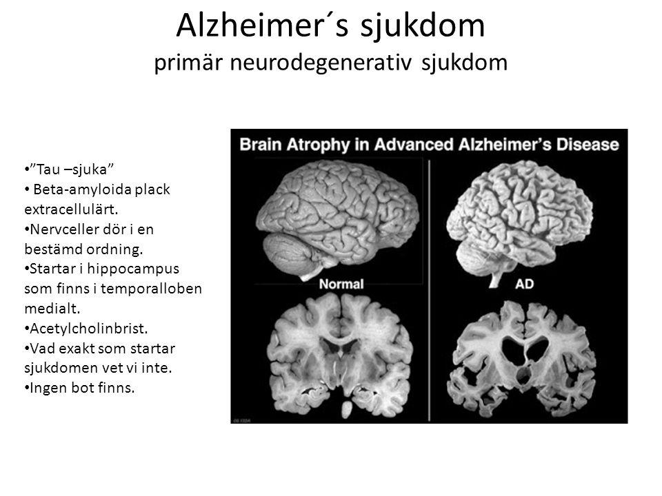 Alzheimer´s sjukdom primär neurodegenerativ sjukdom