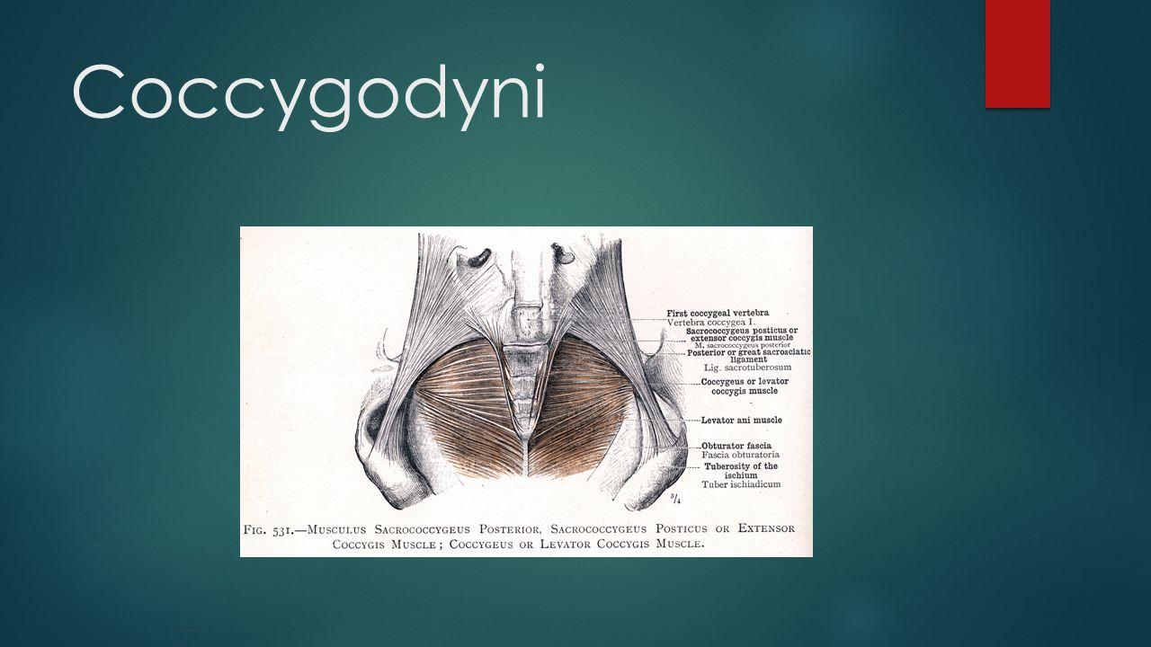 Coccygodyni
