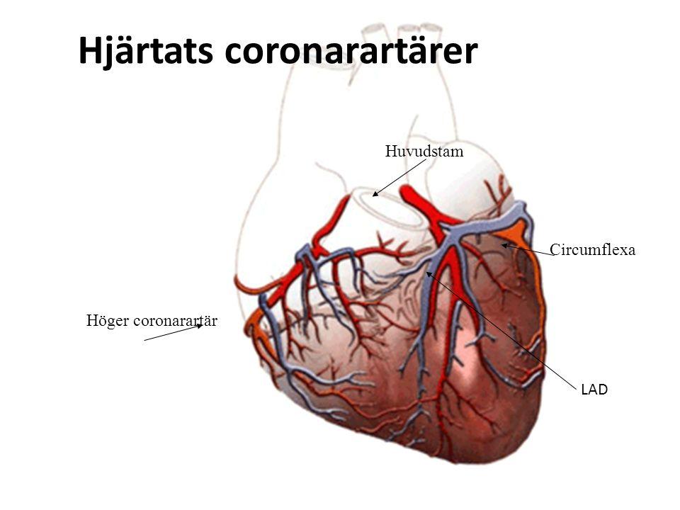 Hjärtats coronarartärer