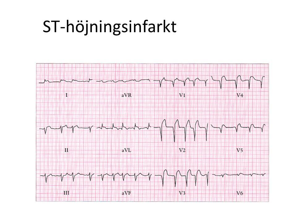 ST-höjningsinfarkt 33