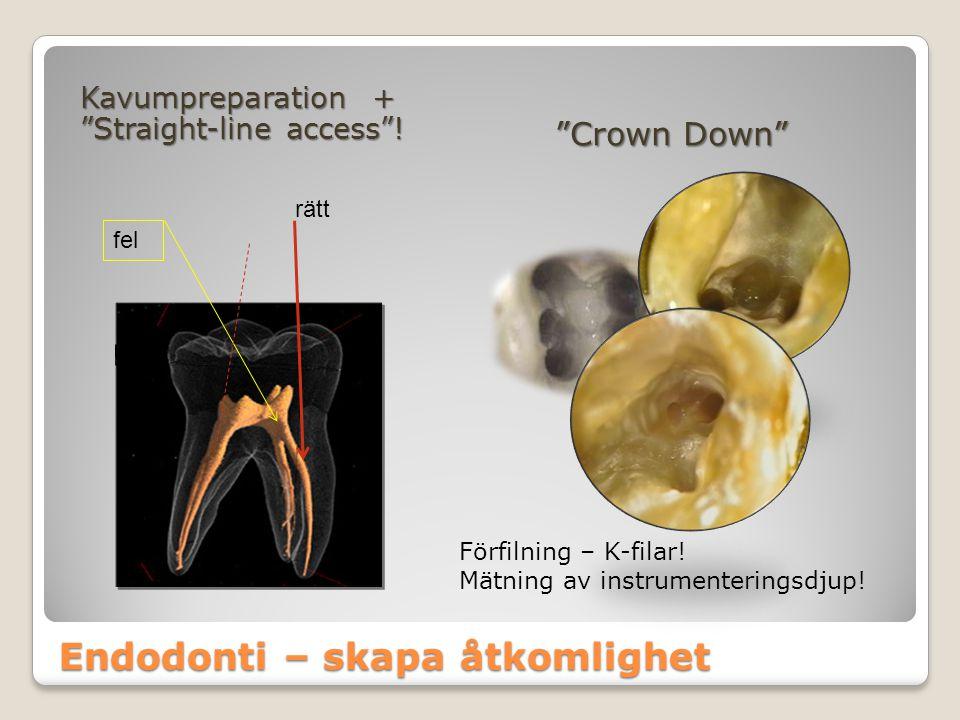 Endodonti – skapa åtkomlighet