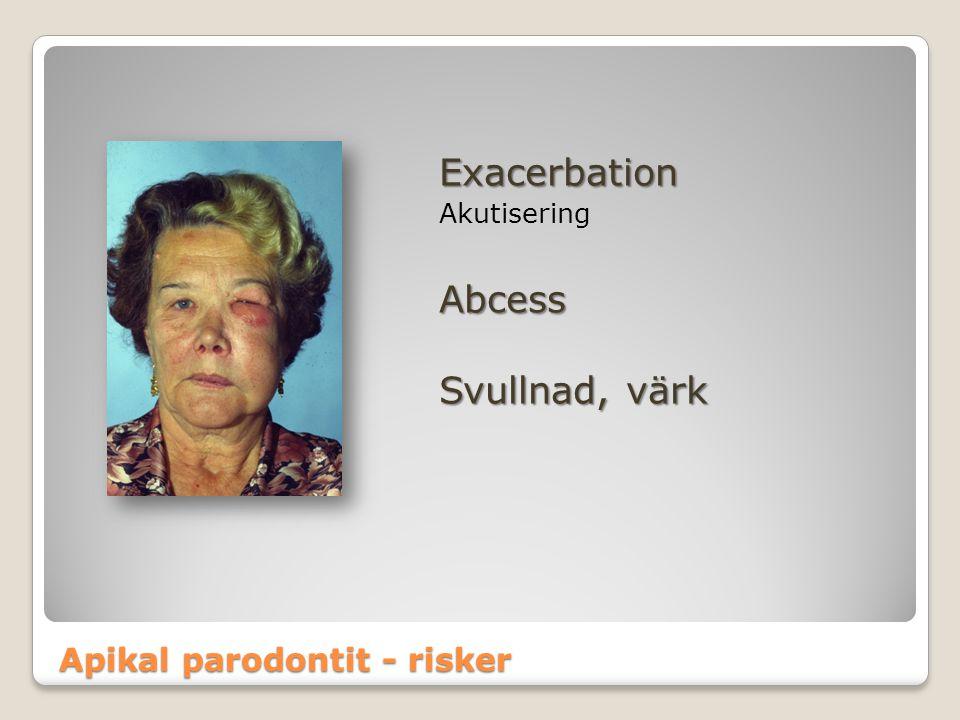 Exacerbation Abcess Svullnad, värk Apikal parodontit - risker