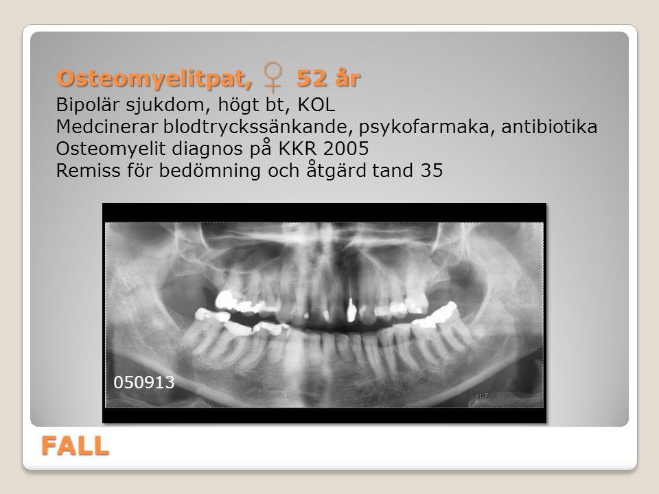 FALL Osteomyelitpat, ♀ 52 år Bipolär sjukdom, högt bt, KOL