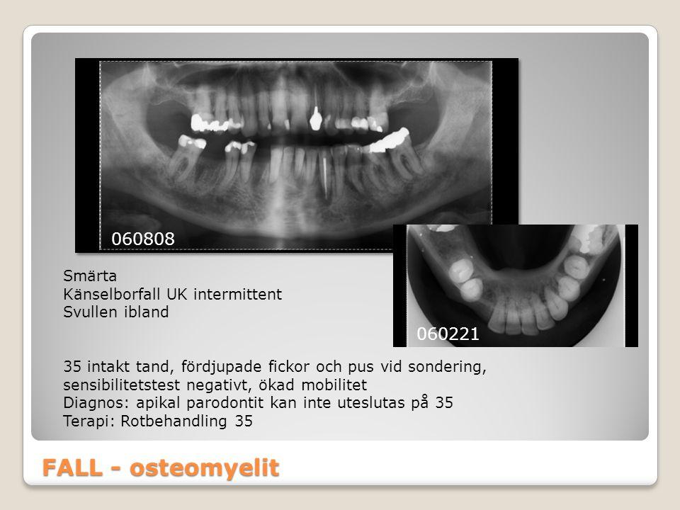 FALL - osteomyelit 060808 060221 Smärta Känselborfall UK intermittent