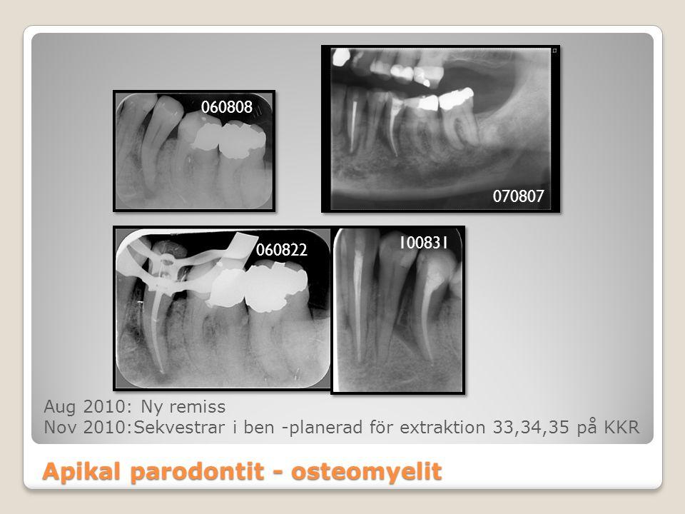Apikal parodontit - osteomyelit