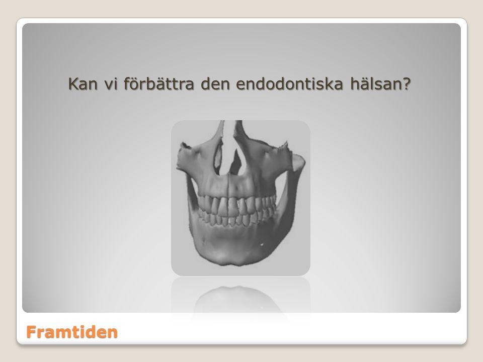 Kan vi förbättra den endodontiska hälsan