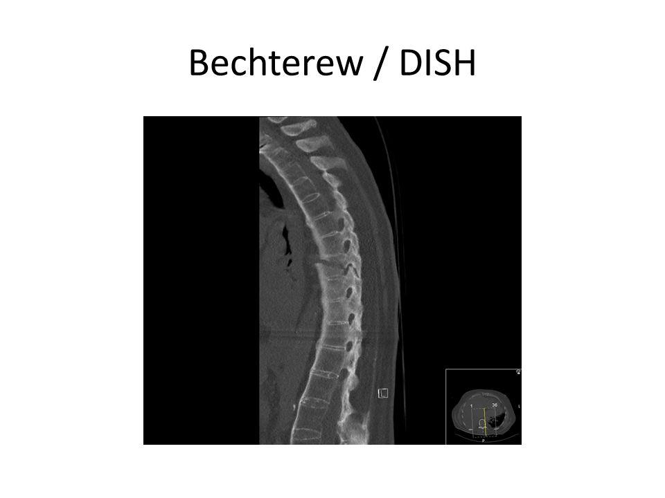 Bechterew / DISH