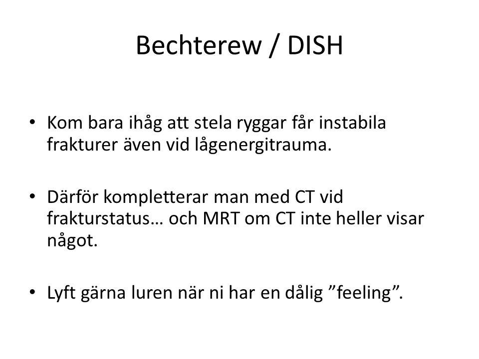 Bechterew / DISH Kom bara ihåg att stela ryggar får instabila frakturer även vid lågenergitrauma.
