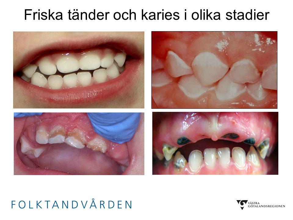 Friska tänder och karies i olika stadier