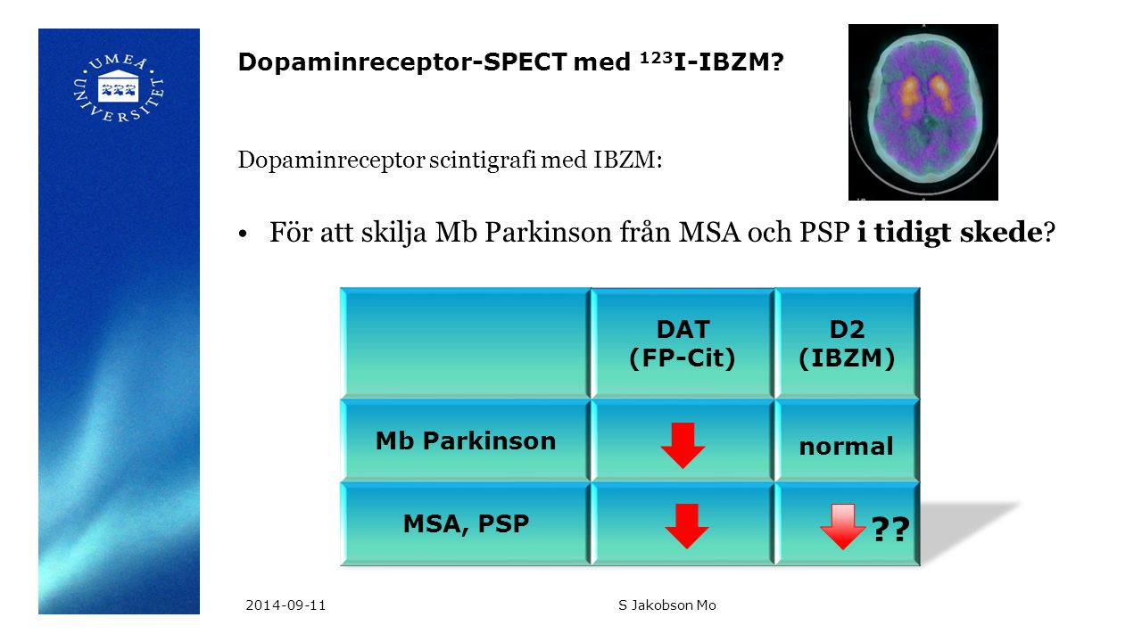 Dopaminreceptor-SPECT med 123I-IBZM