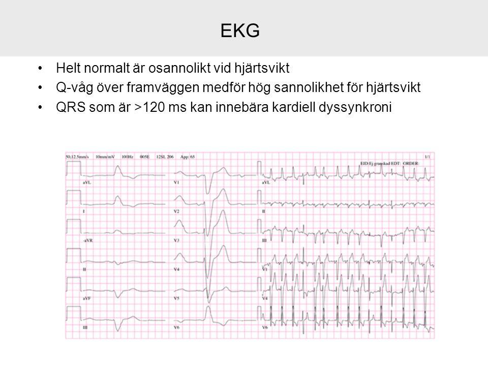 EKG Helt normalt är osannolikt vid hjärtsvikt