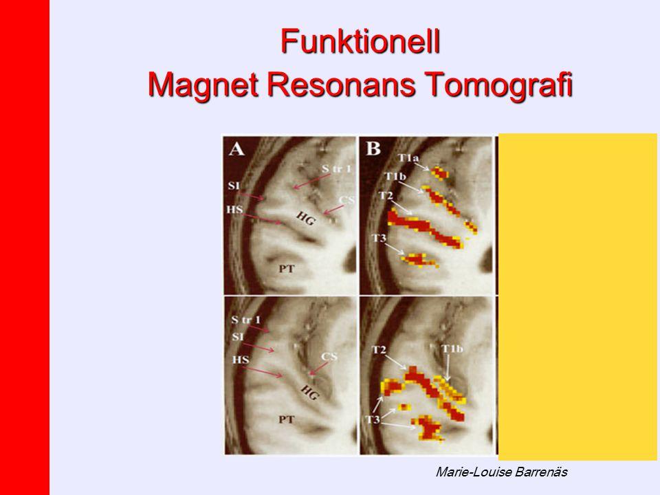 Funktionell Magnet Resonans Tomografi
