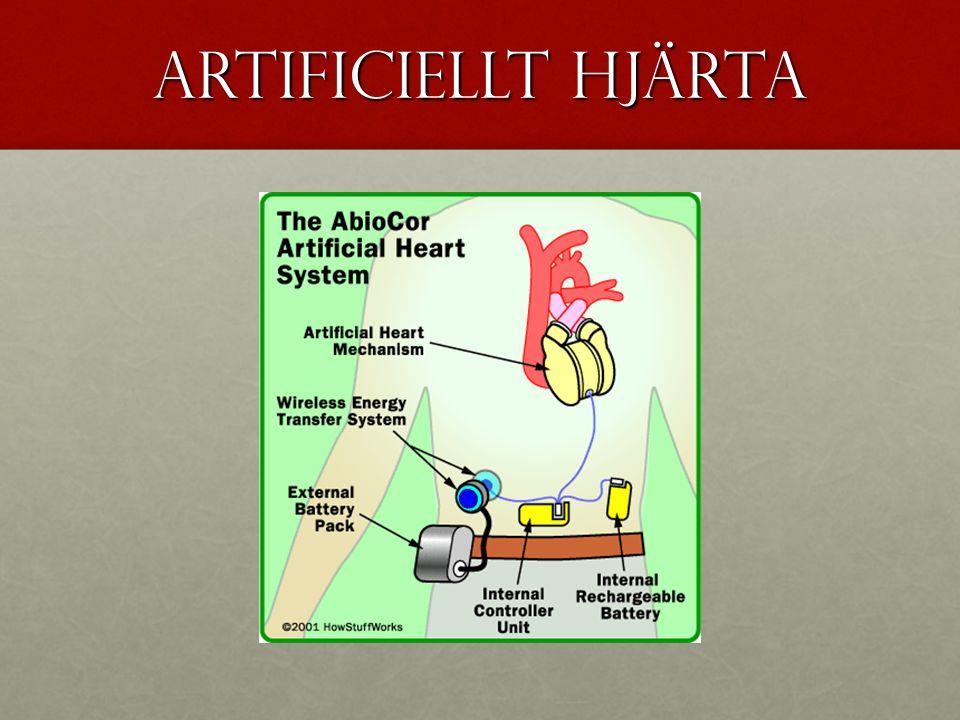 Artificiellt hjärta