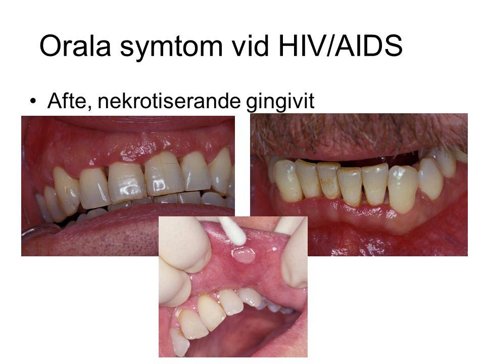 Orala symtom vid HIV/AIDS