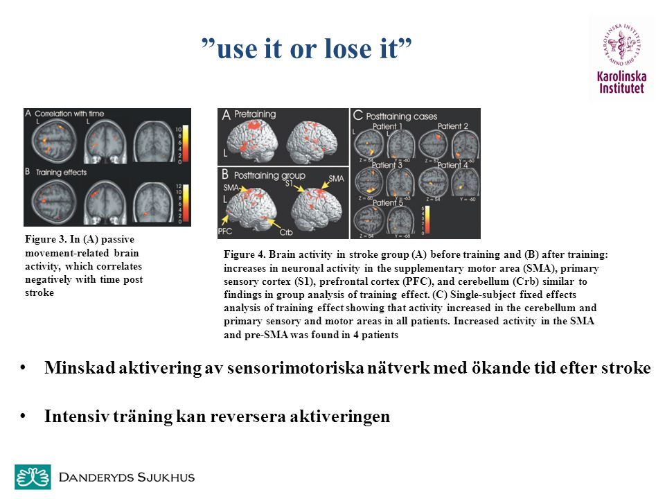 use it or lose it Figure 3. In (A) passive movement-related brain activity, which correlates negatively with time post stroke.