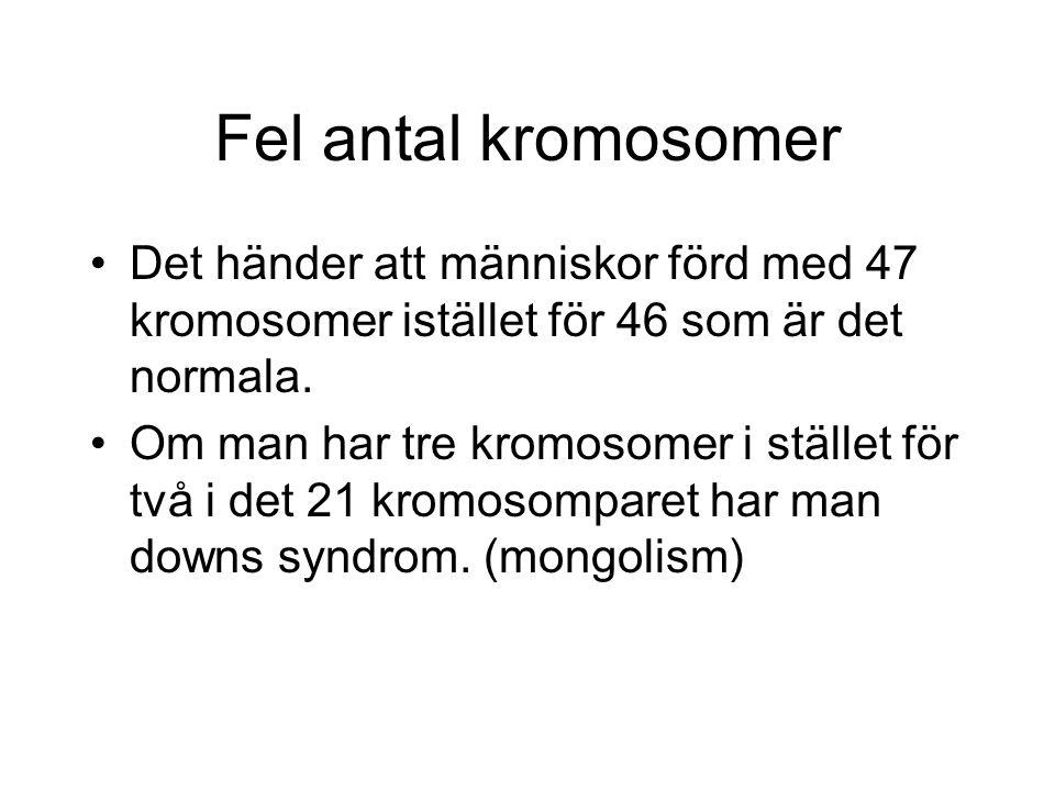 Fel antal kromosomer Det händer att människor förd med 47 kromosomer istället för 46 som är det normala.