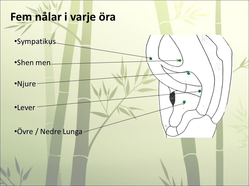 Fem nålar i varje öra Sympatikus Shen men Njure Lever