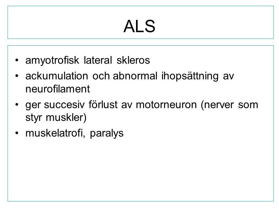 ALS amyotrofisk lateral skleros