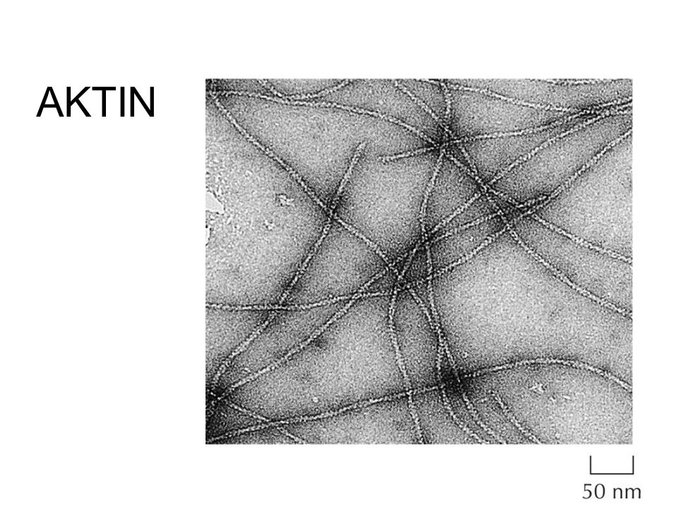 AKTIN \Figures-Hi-res\ch11\cell3e11010.jpg