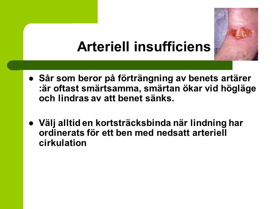 Arteriell insufficiens