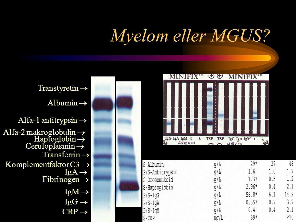 Myelom eller MGUS Transtyretin  Albumin  Alfa-1 antitrypsin 