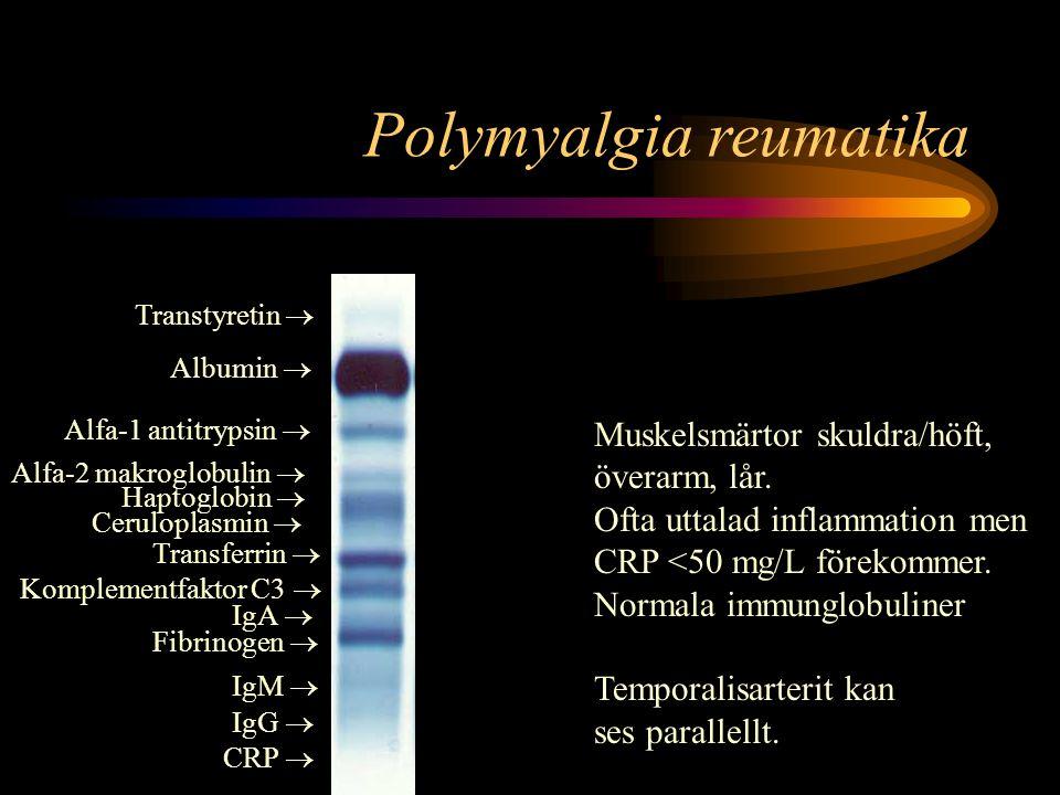 Polymyalgia reumatika