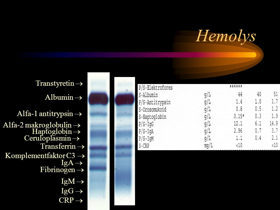 Hemolys Transtyretin  Albumin  Alfa-1 antitrypsin 