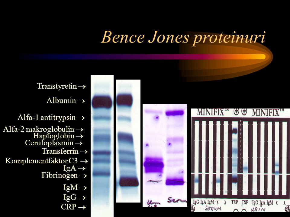 Bence Jones proteinuri