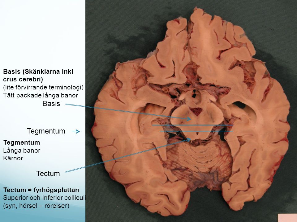 Basis Tegmentum Tectum Basis (Skänklarna inkl crus cerebri)