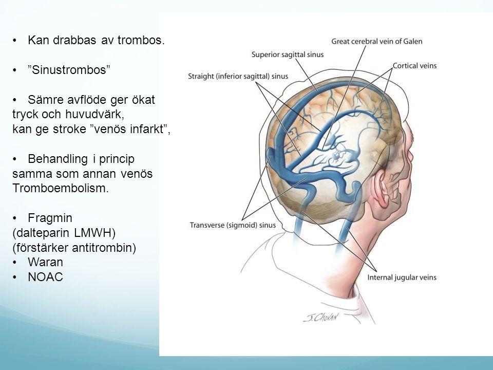 Kan drabbas av trombos. Sinustrombos Sämre avflöde ger ökat. tryck och huvudvärk, kan ge stroke venös infarkt ,