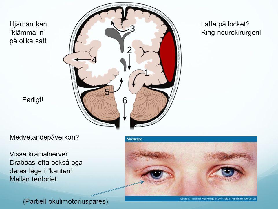 Hjärnan kan klämma in på olika sätt. Lätta på locket Ring neurokirurgen! Farligt! Medvetandepåverkan