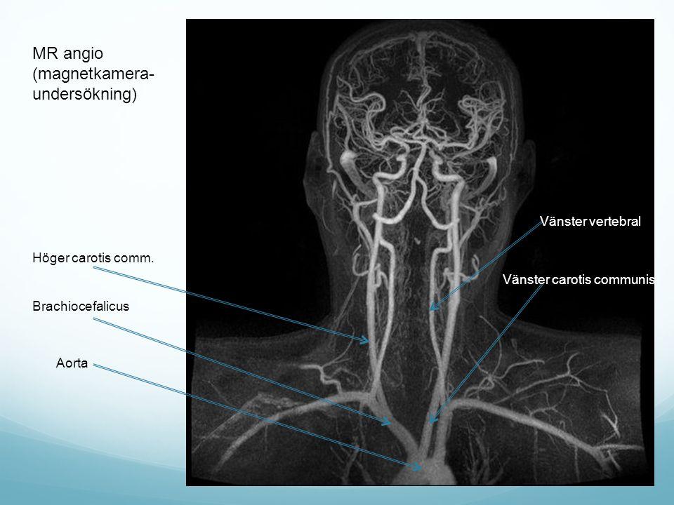 MR angio (magnetkamera- undersökning) Vänster vertebral