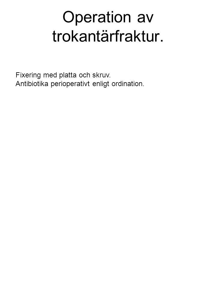 Operation av trokantärfraktur.