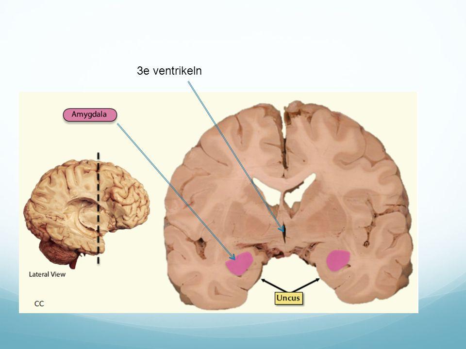 3e ventrikeln