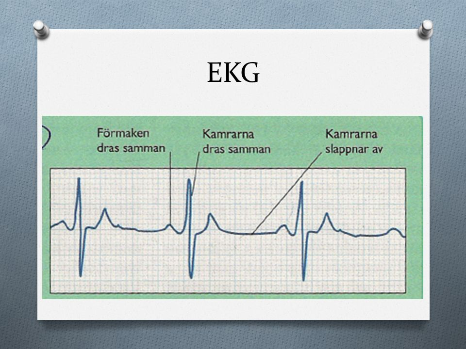 EKG BONUS (BRA BILD ATT VISA OM NÅGON FRÅGAR VAD SOM EGENTLIGEN VISAS PÅ EKG)