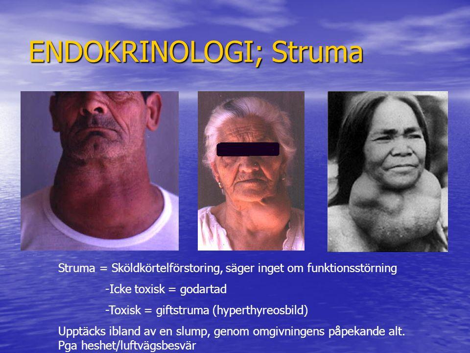 ENDOKRINOLOGI; Struma