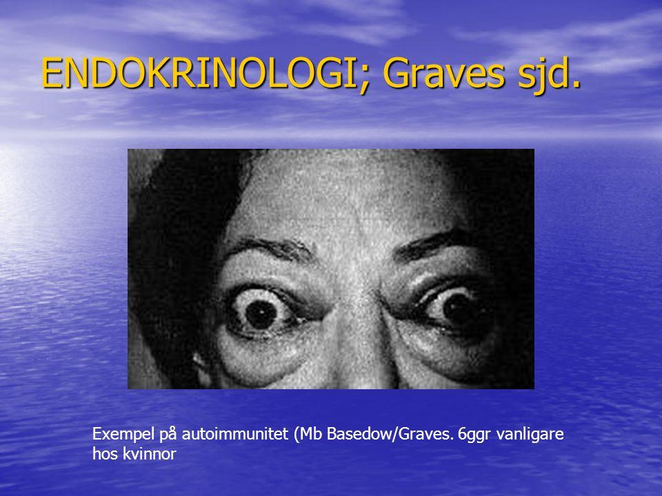 ENDOKRINOLOGI; Graves sjd.