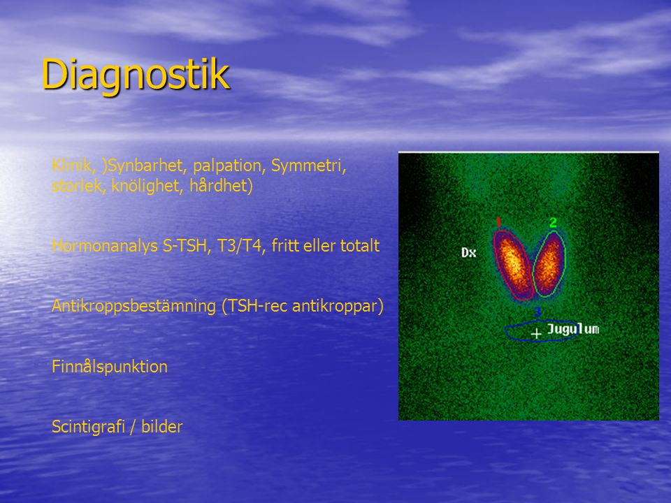 Diagnostik Klinik, )Synbarhet, palpation, Symmetri, storlek, knölighet, hårdhet) Hormonanalys S-TSH, T3/T4, fritt eller totalt.