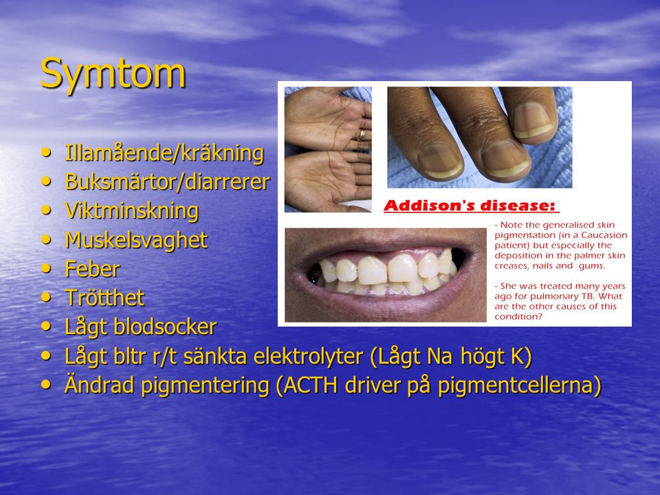 Symtom Illamående/kräkning Buksmärtor/diarrerer Viktminskning