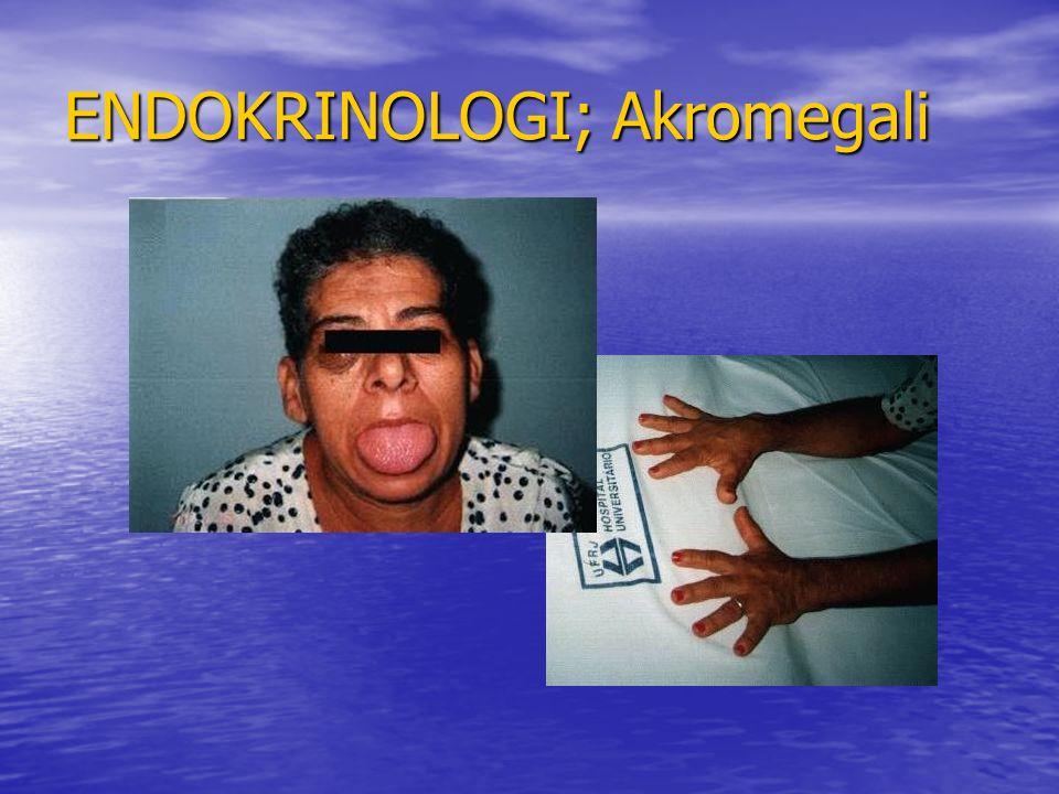 ENDOKRINOLOGI; Akromegali