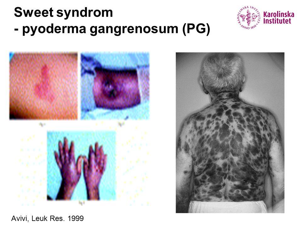 Sweet syndrom - pyoderma gangrenosum (PG)